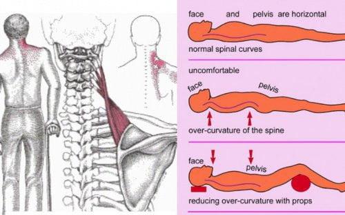 Picture5 - چگونه از گرفتگی گردن پیشگیری و یا آن را درمان کنیم